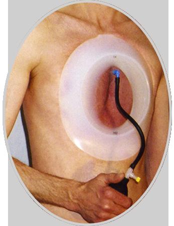 Vacuum Bell Tedavi Uygulama
