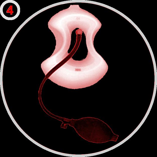 Kadın Tipi Küçük Vakum Sistemi, 19 cm.